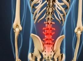 آرتروز کمر چه علائمی دارد؟ درمان ساییدگی مهره کمر با فیزیوتراپی