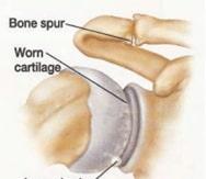 آرتریت مفصل آکرومیوکلاویکولر-
