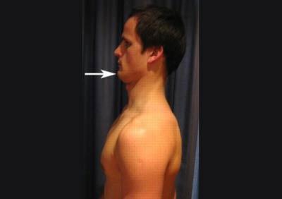 ورزشهای آرتروز گردن