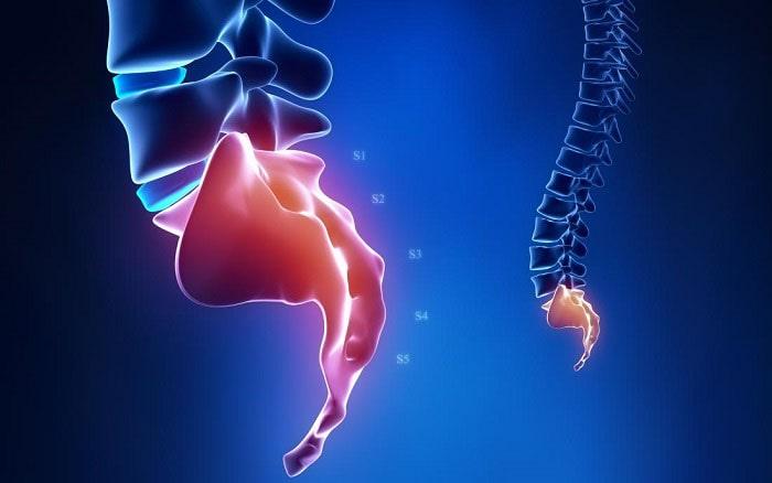 بهترین راه درمان شکستگی استخوان دنبالچه