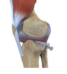 بیرون کشیدن مایع مفصلی (اسپیریشن)