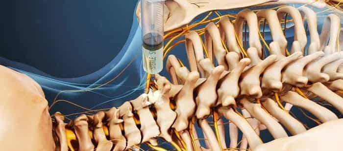 درمان گردن درد با تزریقات اپیدورال و استروئید