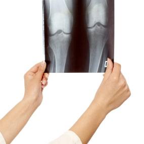 تشخیص آرتروز(ساییدگی) زانو