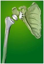 تعویض مفصل شانه چیست