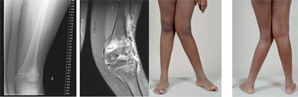 درمان زانو و پای ضربدری بدون جراحی، با حرکات اصلاحی و ورزش