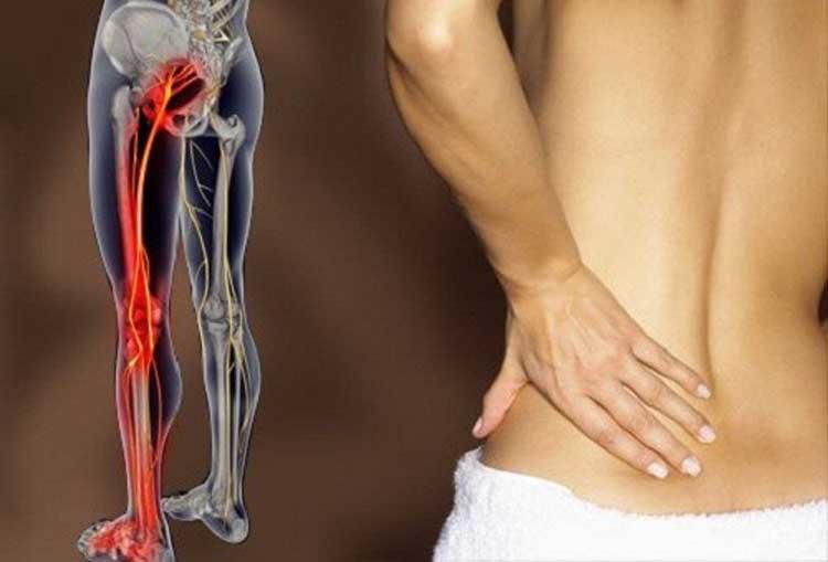 درمان گرفتگی عصب سیاتیک کمر و پا (رادیکیولر) بدون جراحی