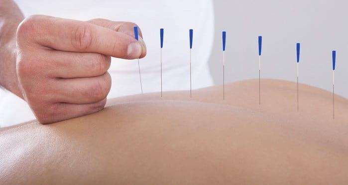درمان آرتروز کمر با طب سوزنی
