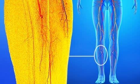 عروق خونی که باعث پا درد میشوند