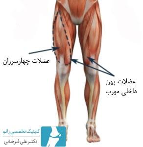عضلات چهاسرران کدام عضلات هستند؟
