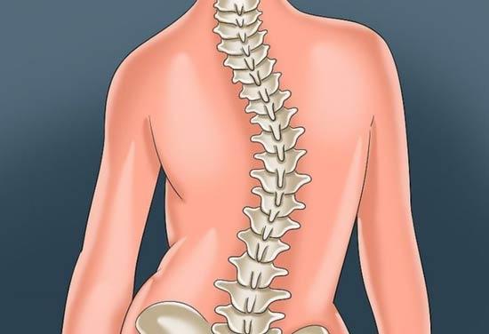 علائم و درمان انحراف و کجی ستون فقرات (اسکولیوز) با طب فیزیکی