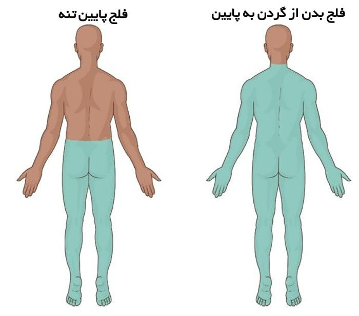 علائم و نشانههای آسیب دیدگی طناب نخاعی چیست