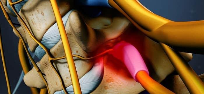 علت تنگی کانال نخاعی گردن چیست؟