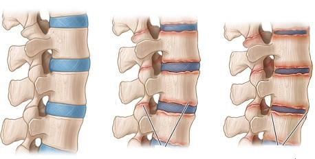 اسپوندیلیت آنکیلوزان(گرفتگی و خشکی عضلات کمر): درمان و علائم
