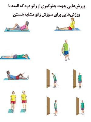 فیزیو تراپی و حرکات ورزشی برای درمان سوزش،گزگز،بیحسی و سوزنسوزن شدن زانو