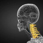 قوس گردن خطرناک است؟ درمان انحنای زیاد گردن بدون جراحی