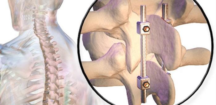 مراحل انواع عمل فیوژن ستون فقرات (پیوند استخوان ستون فقرات)