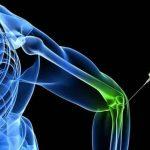 مزایا و مراحل ارتوکین تراپی برای کاهش درد و التهاب بدن-min