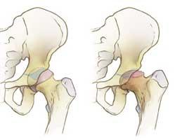 مکانیسم ایجاد نکروز یا سیاه شدن سر استخوان ران