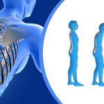 پوکی استخوان (استئوپروز) با فیزیوتراپی و ورزش قابل درمان است؟