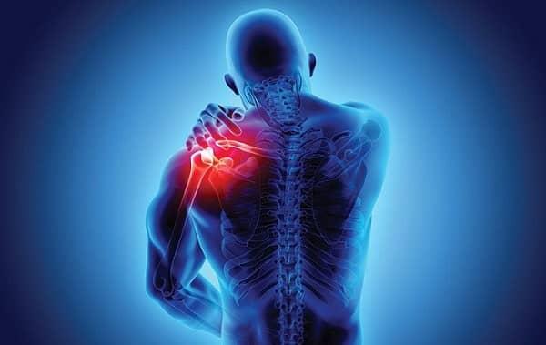چه زمانی باید برای درد کتف چپ به پزشک مراجعه کرد؟