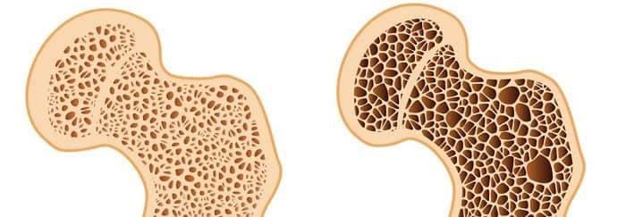 چه عواملی باعث پوکی استخوان میشوند؟