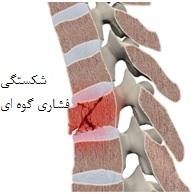انواع شکستگی های ستون فقرات