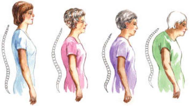 aging posture