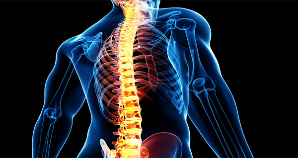 درمان و علائم شکستگی مهره های کمر و ستون فقرات